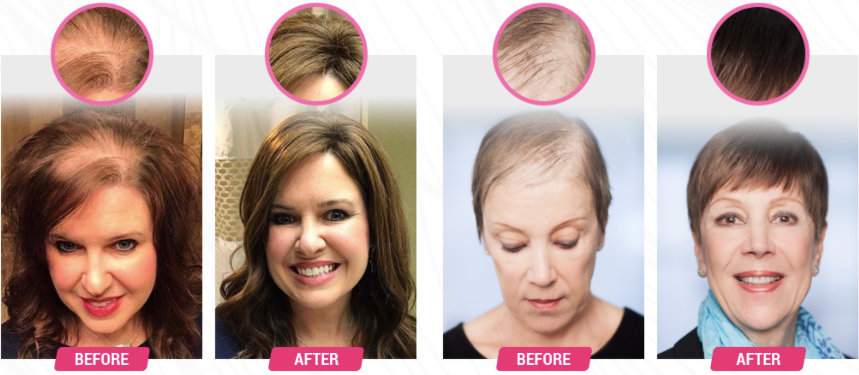 HairFortin Nutrition Formula - Users Results