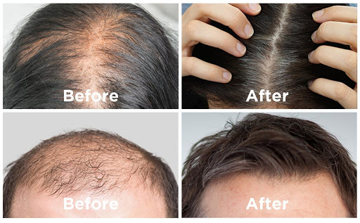 Hair Revital X Ingredients List: Consumer Before & After Results