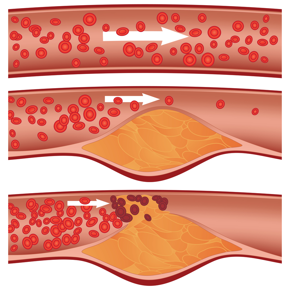 The Oxidized Cholesterol Solution Reviews
