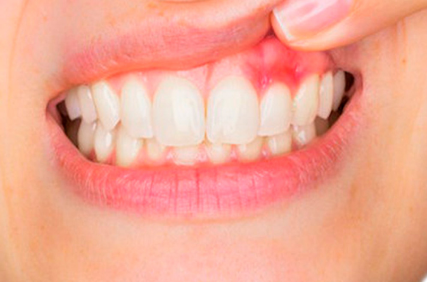 Denti Strength Ingredients List - Any Risky Side Effects? Clinical Studies